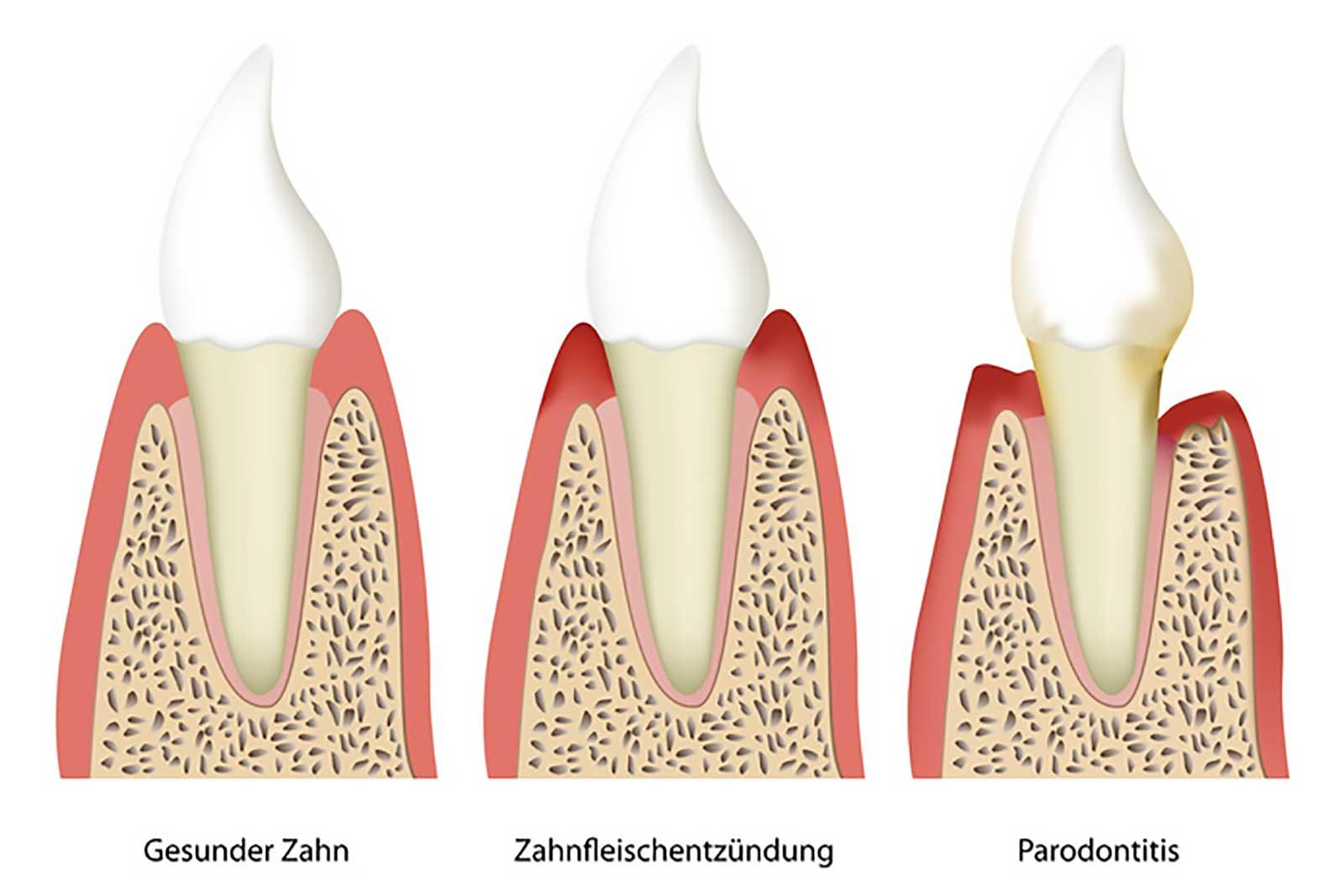 Parodontologie Konstanz